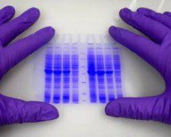 Зачем сдавать общий анализ крови
