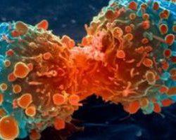Ученые взялись за исследование природы рака легких